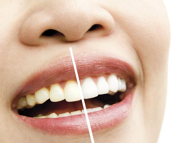 Estètica Dental Creu Groga
