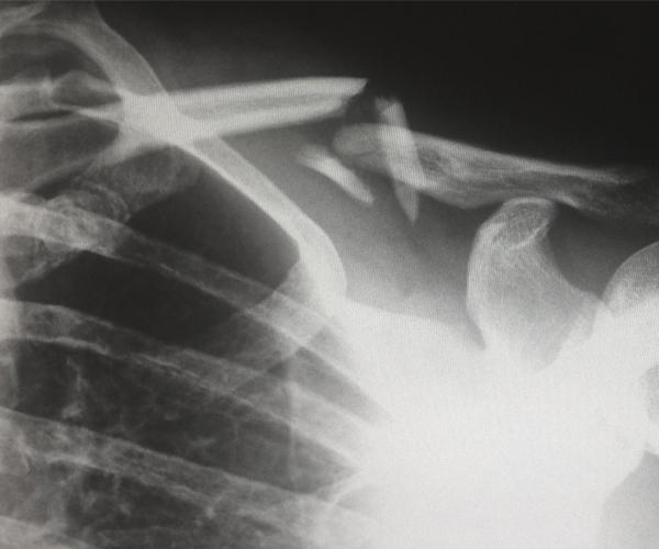 Traumatologia i ortopèdia Creu Groga